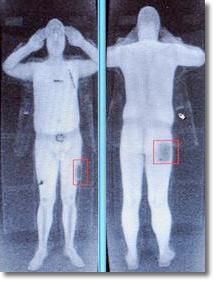 bild av nakenscanning