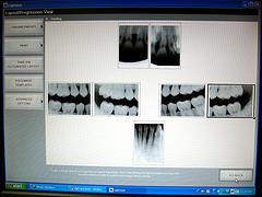 dataskärm med röntgenbilder